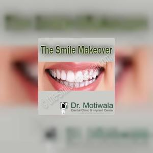 thesmilemakeover